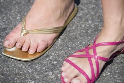 Klip-klap'ere og sandaler er oplagte sko til varmen. Men ved du, hvordan de ødelægger fødderne?