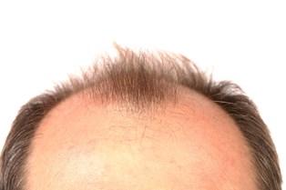 Er dit hår tyndt og pjusket at se på, og ville du ønske, at du kunne gro et sundt og livfuldt lang hår? Så tag et kig på dine vaner