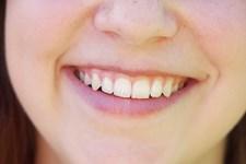Tuber med sort tandpasta sælges med lovning om hvidere tænder på skånsom vis. Men der er ikke hold i løfterne, siger overtandlæge.