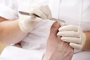 Hård hud og revner i hælene kender mange, men ligtorne, knyster og nedsunken forfod er også udbredte problemer med fødderne