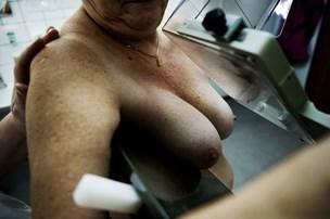 Kvinde kræver erstatning - blev screenet 38 dage for sent for kræft