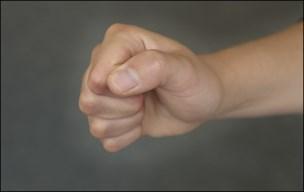 Kvinde overfaldt flere ansatte på behandlingscenter