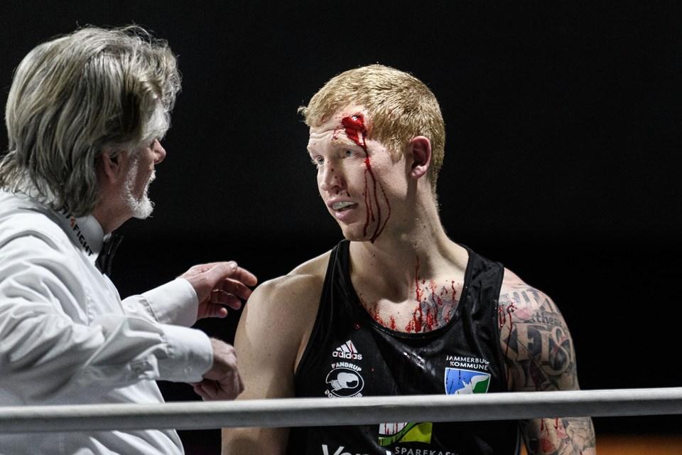 9545ee2e Blodige juletæsk i Pandrup: Keller sejrede i comeback til ringen ...