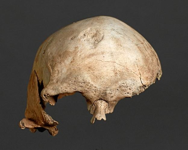 På Vesthimmerlands Museum findes kraniekalotten af Nordens næstældste mand. Hør hans historie og mange flere, når museumsinspektør Bjarne Henning Nielsen til et særarrangement i anledning af kulturugen finder nogle af museets sjældne fund frem.