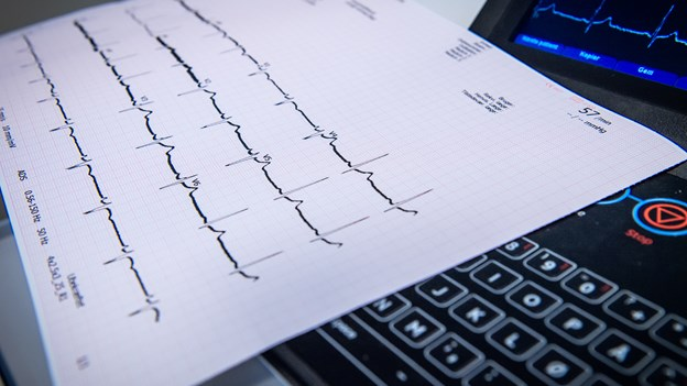 AAU-forsker trækker i land: - Sig trygt ja til pacemaker