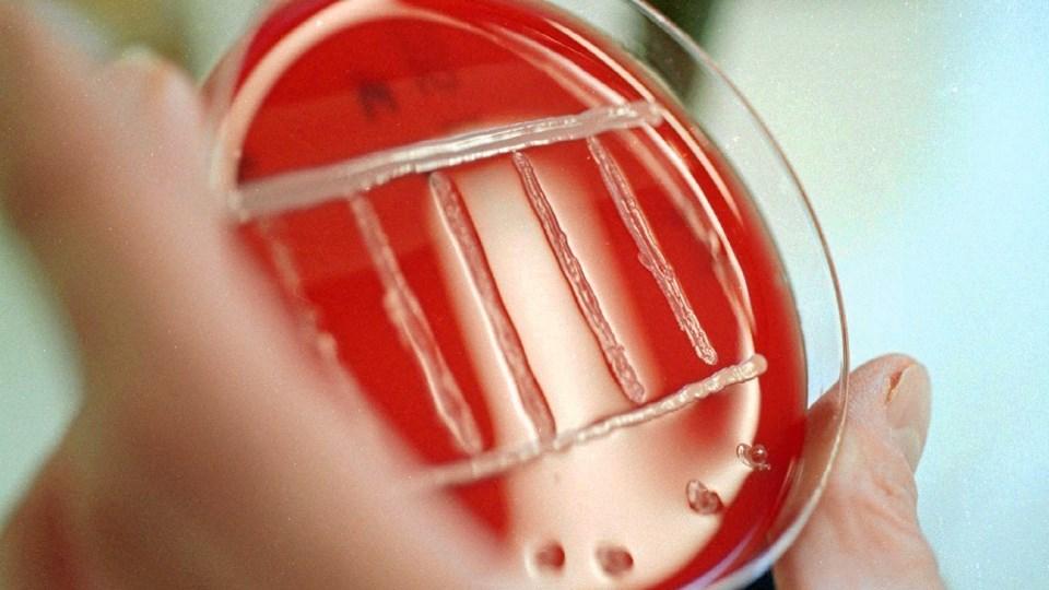Listeria er en ganske farlig bakterie, så få aiolien smidt ud eller leveret tilbage til den butik, hvor den er købt. Arkivfoto