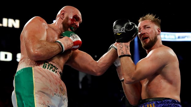 Tyson Fury har fokus på ny Wilder-kamp efter pointsejr