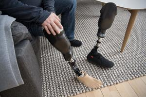 Sparetider: Slut med Pers benprotese