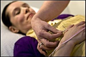 Akupunktur er en succes ved fødsler