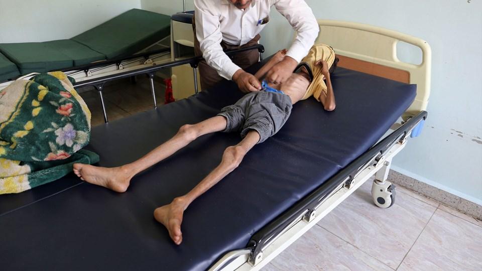 FN vurderer, at mindst 14 millioner mennesker i Yemen har brug for akut hjælp udefra i form af mad, hvis en omfattende sultkatastrofe skal undgås. Yemens er længe blevet omtalt som den værste humanitære katastrofe på Jorden.