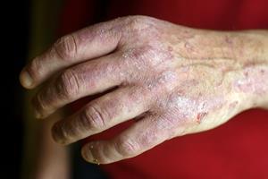 Nordjyske psoriasis-patienter får en håndsrækning
