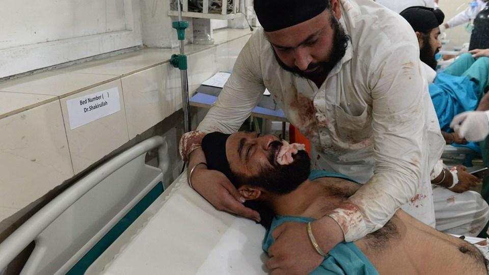 Et af ofrene for et bombeangreb i Jalalabad søndag behandles på e hospital. Politichef Ghulam Sanayi Stanekzai siger, at en selvmorder stod bag eksplosionen. Han sprængte sig selv i luften ved et køretøj, som var fyldt med medlemmer af sikher-mindretallet. Foto: Noorullah Shirzada/Ritzau Scanpix