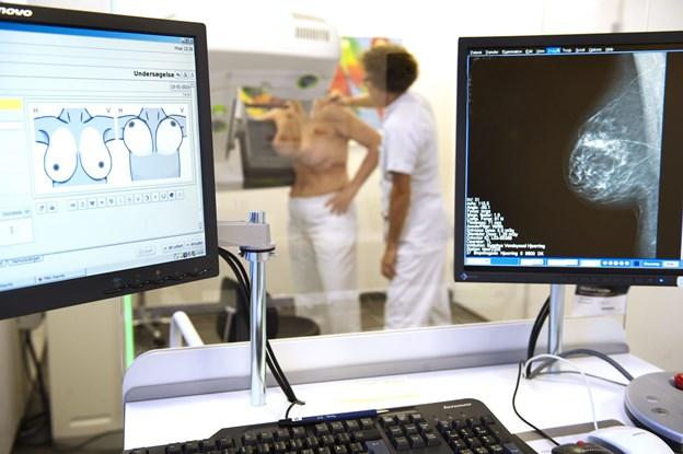 Nordjyske sygehuse får nye opgaver: Frederikshavn mister kirurgi og overtager mammografi-screening fra Hjørring